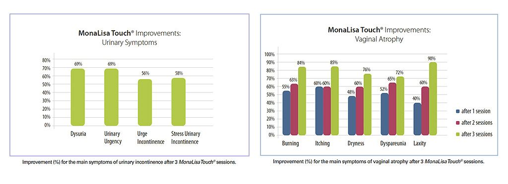 MonaLisaTouch3 session success graph